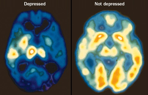 These PET scan images compare the brain of a patient with depression and the brain of a patient without. The decrease in red and white areas indicates a decrease in brain activity because of the disorder, which student Susan Smith has struggled with for three years.